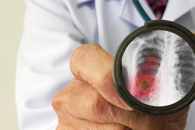 Sans surprise, le coronavirus reste en tête de l'actu cette semaine. (Photo: Shutterstock)